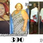 Lesa lost 123 with weight loss surgery