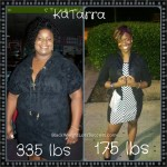KaTarra lost 160 pounds with weight loss surgery