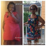 Shaunda lost 83 pounds with surgery